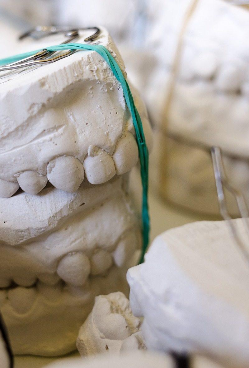 Zła metoda odżywiania się to większe niedostatki w zębach natomiast także ich utratę